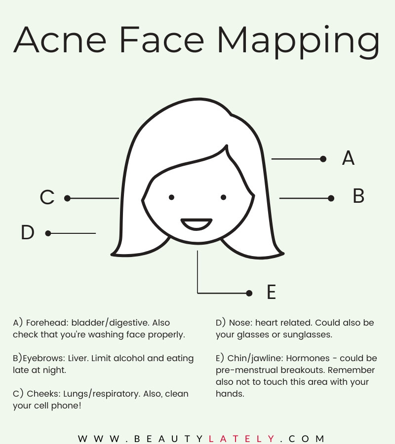 Acne Face Map Infographic