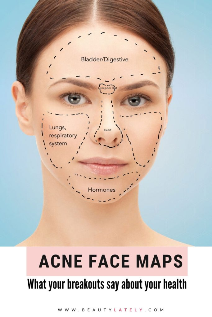 Acne Face Map Infographic Pin